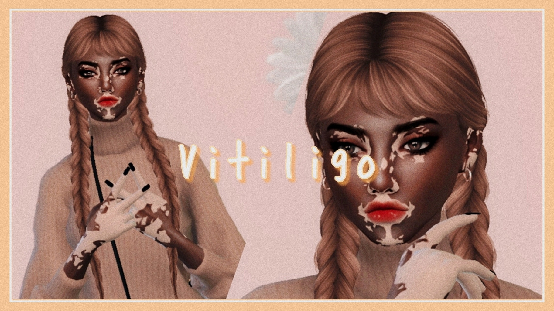 The Sims 4 Vitiligo Female The Sims 4 Catalog